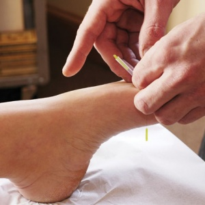 acupuncture-